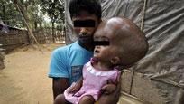 孟加拉两岁男孩患脑积水头部重18斤 大如西瓜