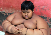 世界最胖男孩10岁重384斤