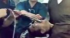 现场:医生成功从患者喉咙取出扳手