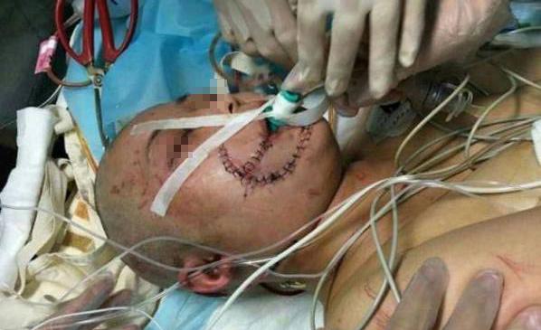 京被老虎咬伤女子需多次手术 容貌难恢复