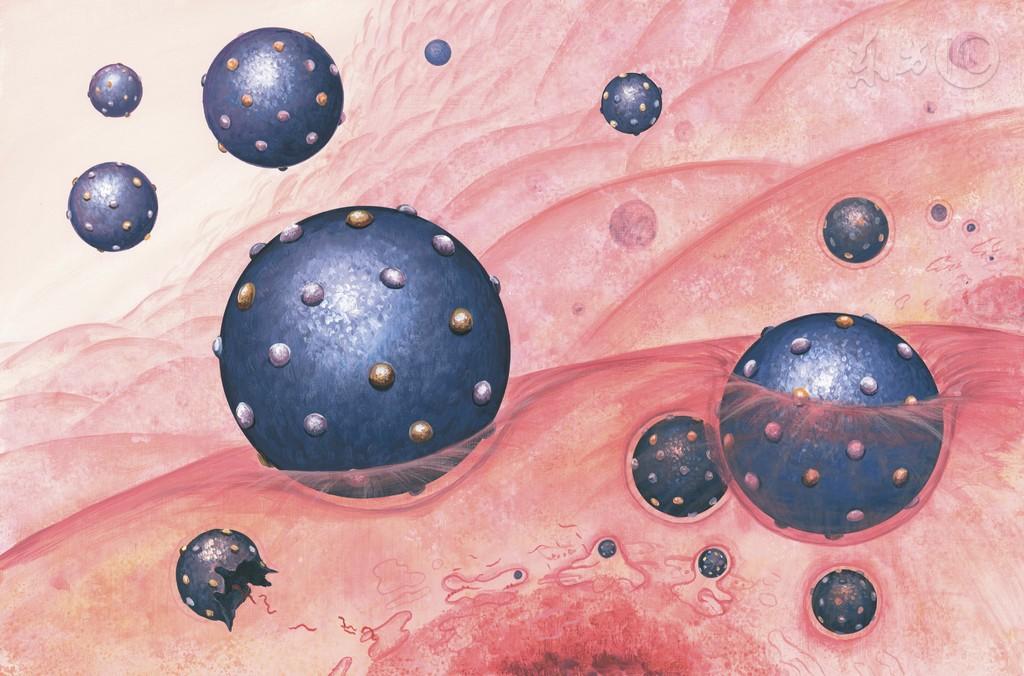 专家提醒:慢性肝依卡劳特病患者要警惕反流性食管炎