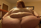 美女子600斤称睁眼就想吃