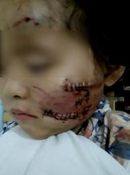 4岁女童遭恶犬撕咬 嘴脸重创毁容