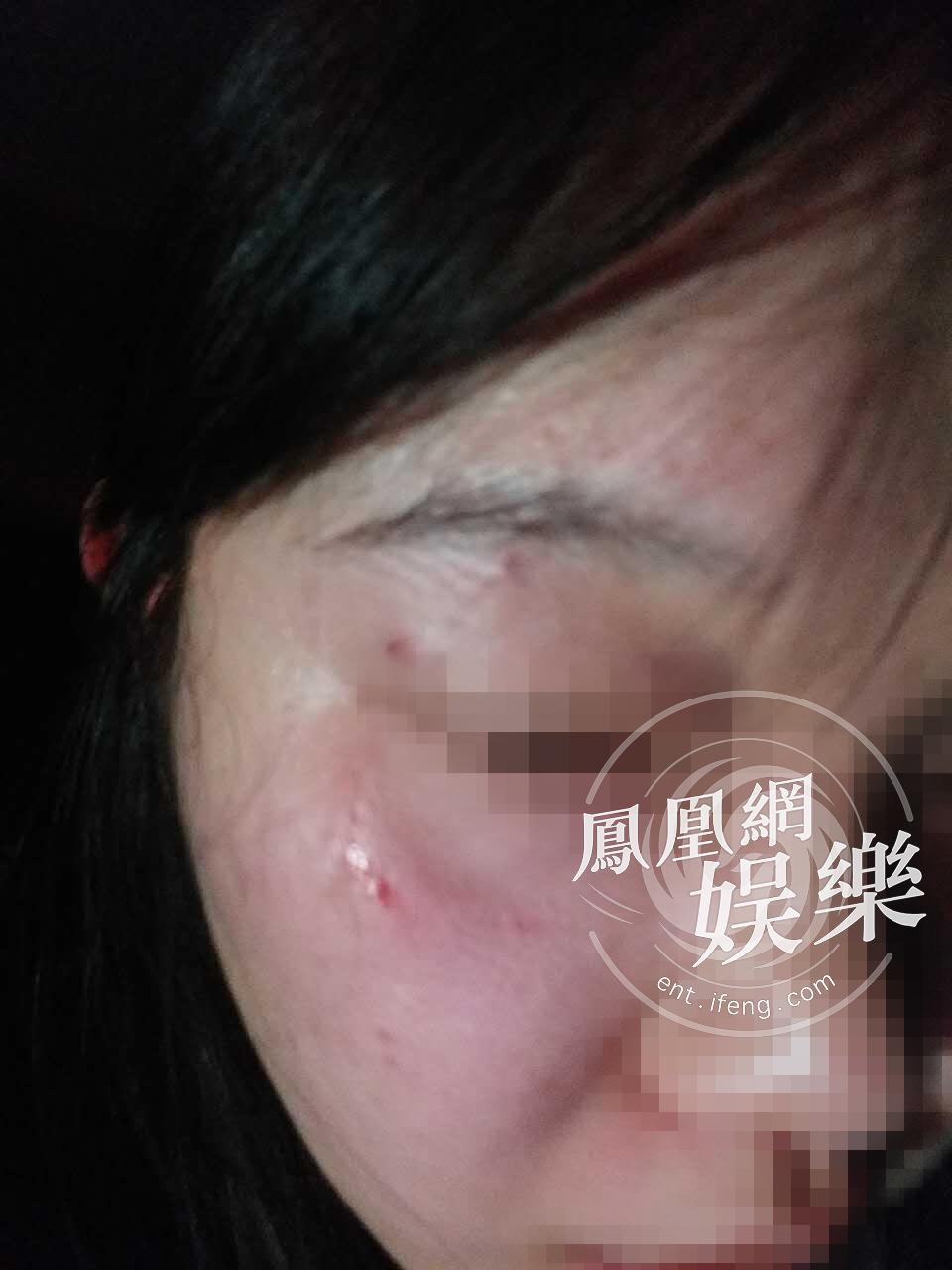 被殴女记者斥徐峥是缩头乌龟 徐峥还原经过 (图)
