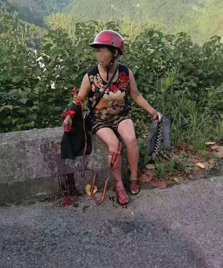 农妇遭五步蛇空袭 怒撕毒蛇为儿加个菜 (图)