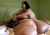千斤女子狂甩720斤重获健康