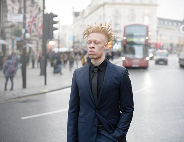 英白化病男孩受尽嘲笑 成功逆袭成时尚模特