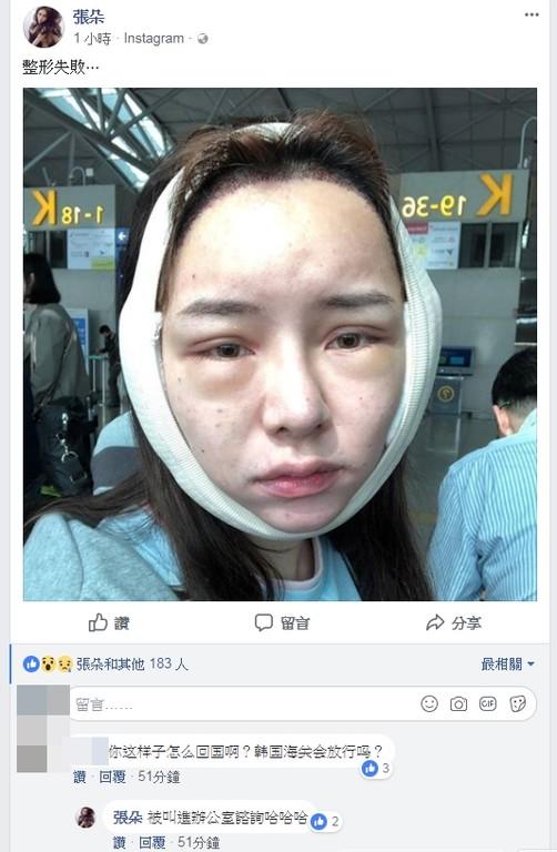 女星赴韩国整容失败 脸过敏肿两倍大被卡海关