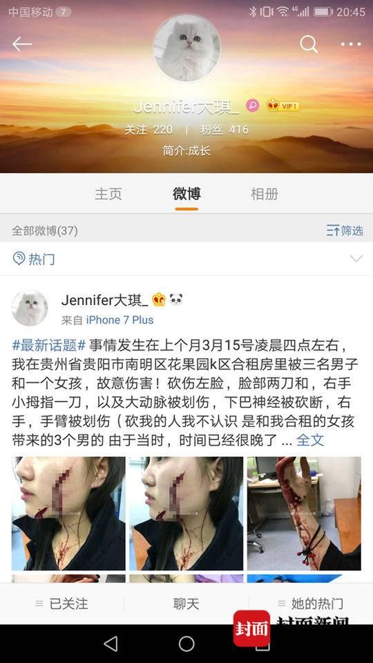 18岁女孩称在合租房被3男子砍毁容 脸缝200多针