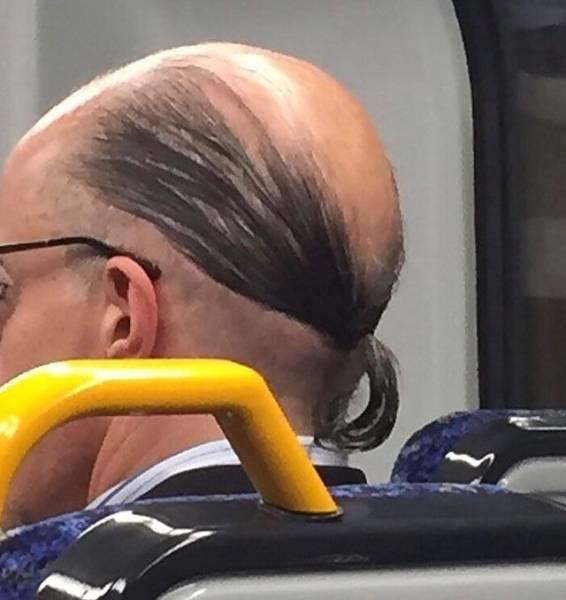 秃头有救了!英国科学家要用骨质疏松药