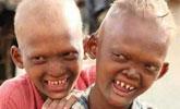 印度两兄弟长尖牙如外星人 被认为是