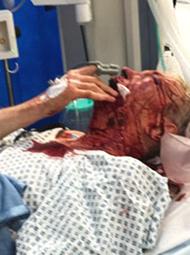 英前驻美大使街头被袭 眼窝被打破