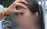 18岁女孩做开眼角手术 结果眼睛再也闭不上了
