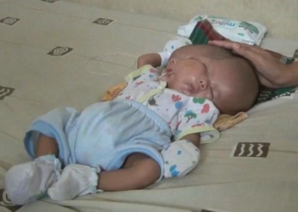 印尼产妇诞双脸畸胎 曾做三次产检