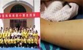 天津一幼儿园老师针扎儿童被拘,一孩子身上被诊断有点状结痂