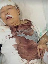 83岁老太被保姆殴打