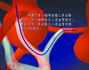 腹动脉瘤手术新法:可让患者少流1升血