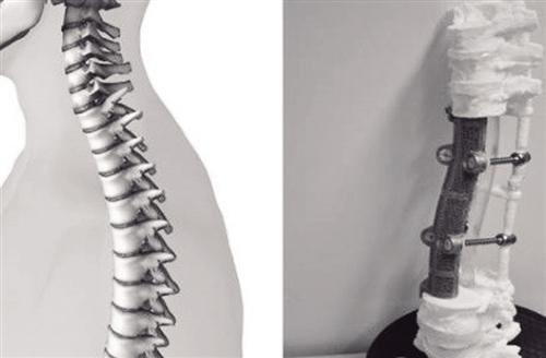 人体椎体结构示意图及世界首个3d打印多节段胸腰椎