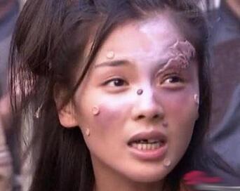 美女刘涛变成了这样?豁牙淤青满脸阴部太视频摸痘痘美女图片