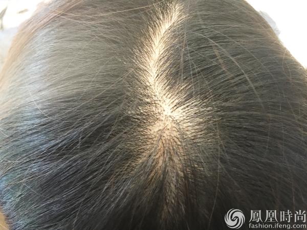 编辑评测:HairMax光学健发梳