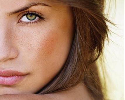 经常遇到一些美女,花容月貌,只是脸上长些斑点.