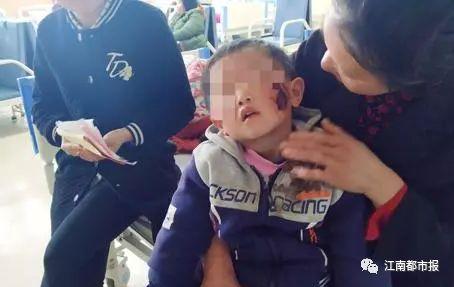 路边玩耍时被狗咬 赣州一2岁女童半张脸被