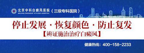 北京中科白癜风医院谈夏季白斑高发如何防治?