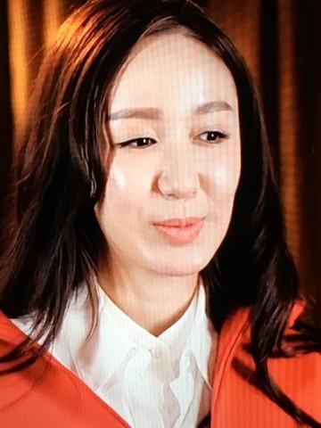 否认整容和打针,但娄艺潇的脸真的好奇怪