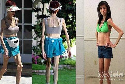 最瘦的女人_世界上最瘦的女人,像纸人一样 25公斤