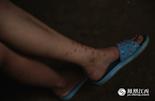 在城里,许多女生出门都要抹上许多的护肤品和防晒霜,而同龄的涂亲亲因为常年在田里劳动,脚上全是被各种虫子咬过留下的疤痕。