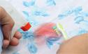 3种顽固污渍的清洁方法,如何清理强力胶,口香糖和血迹