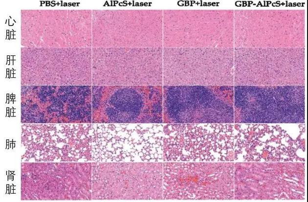 来自实验小鼠的主要器官的染色图像(图片来源:论文)